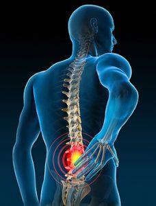 L'exercice physique : la meilleure prévention contre le mal de dos