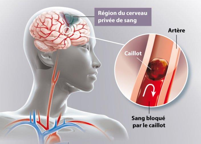 AVC : des cellules souches injectées dans le cerveau pour réparer les dégâts